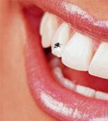 Piercing nos dentes