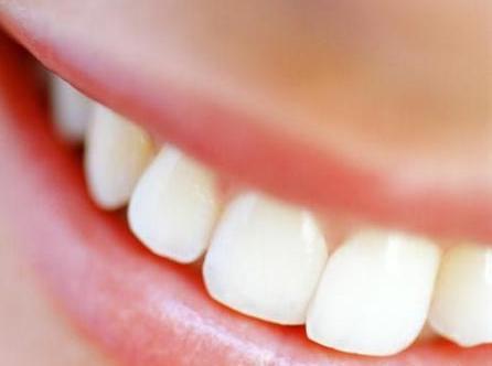 dentes e um belo sorriso